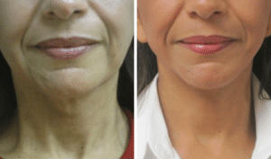 Neck Lift Before and After San Antonio TX