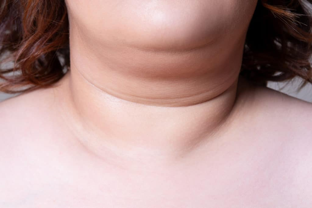 Flabby skin on the neck of an fat woman, female double chin on gray background, wrinkle treatment